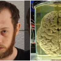 Previous article: Pennsylvania man steals human brain, uses it to get high