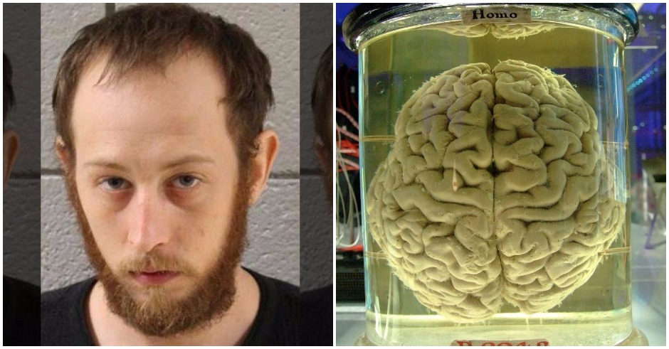 Pennsylvania man steals human brain, uses it to get high